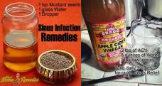 14 Simple home remedies for sinus infection