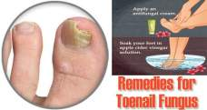 15 Diy home remedies for toenail fungus