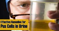 15 Effective home remedies for pus cells in urine