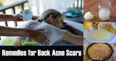 15 Natural remedies to get rid of back acne scars