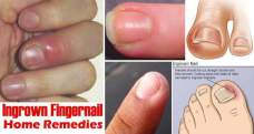 How to get rid of ingrown fingernails