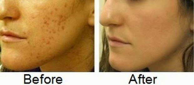 11 Top remedies to remove acne scars