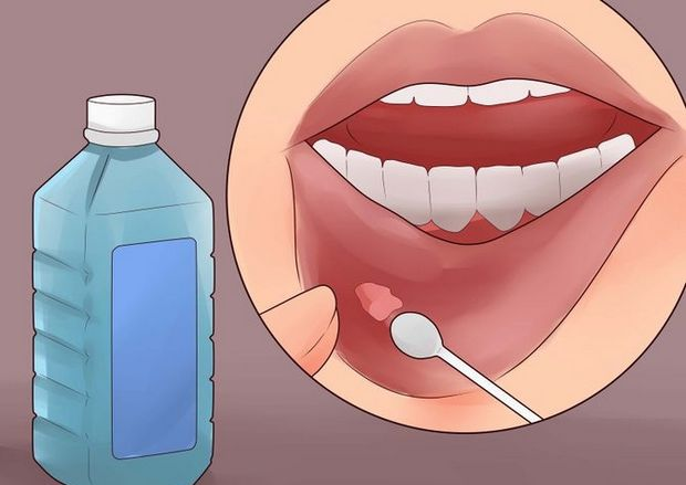 17 Natural remedies to get rid of mouth ulcers