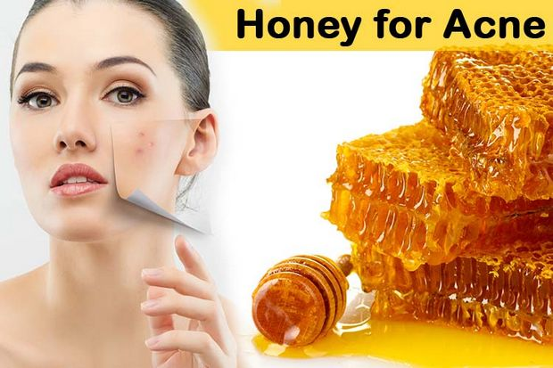 Honey for acne - use honey to remove acne and its scars