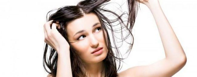 Dandruff home remedies for greasy hair/oily scalp