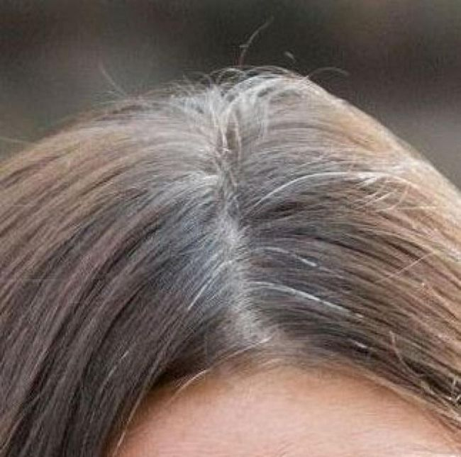 Does plucking white hair spread more white hair?