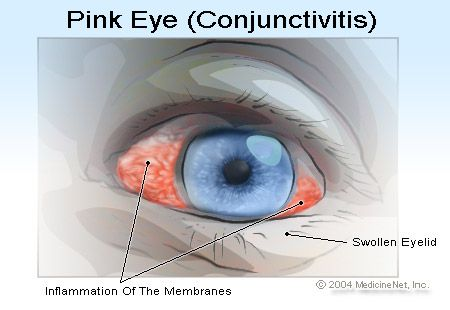 Tips to prevent spreading the pink eyes / conjunctivitis