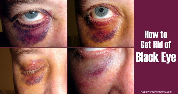 14 Simple ways to get rid of black eye