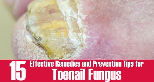 Natural Remedies for Toenail Fungus