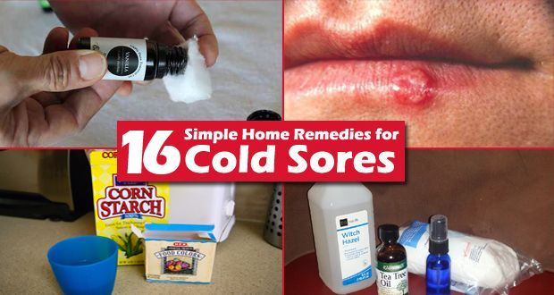 16 Simple home remedies for cold sores