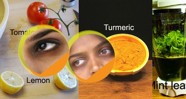 Home remedies to get rid of dark circles under the eyes