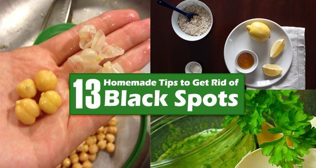 How to Get Rid of Black Spots on Your Face?