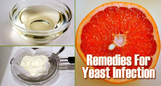Top 5 Natural Remedies for Yeast Infection